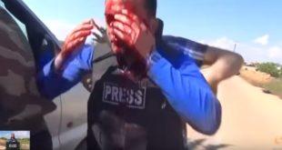 novinar, pogođen u glavu